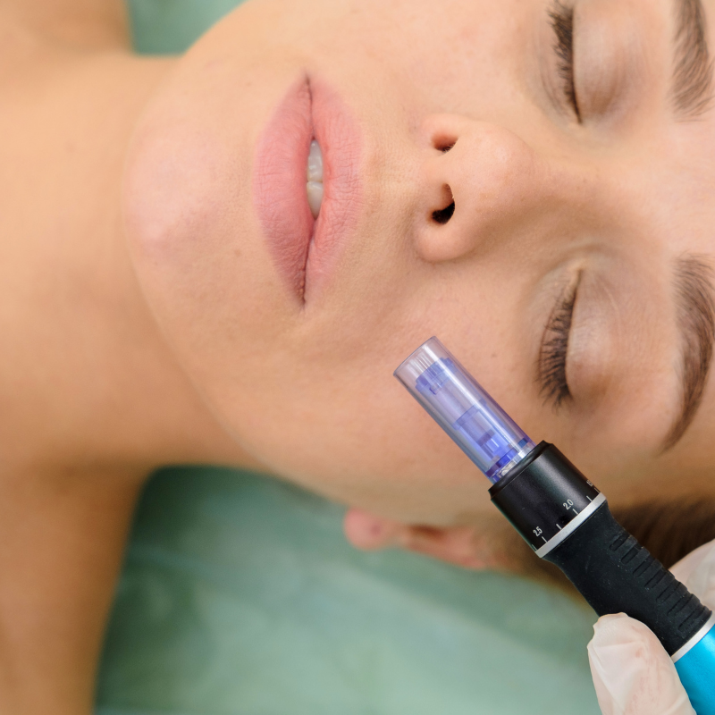 Microneedling on face of woman