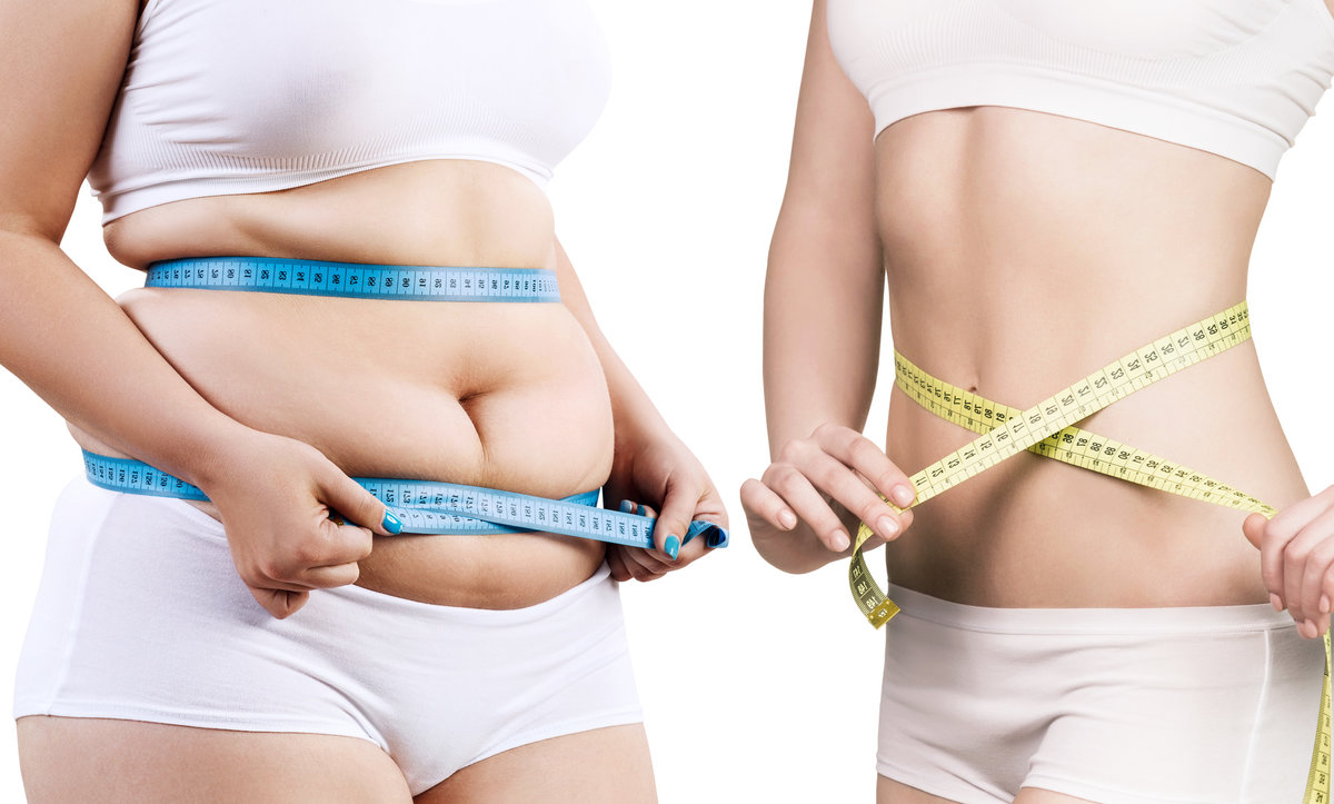 Physician Assisted Weightloss Calgary