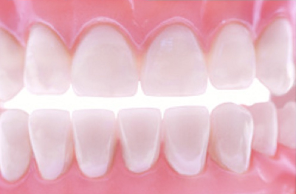 Restoring your Teeth can Restore your Confidence!