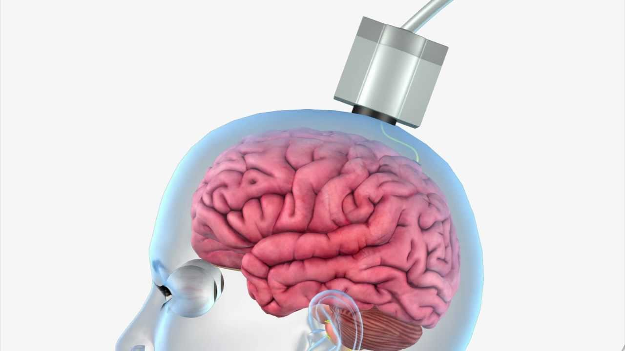 Brain Chips Are Here To Help