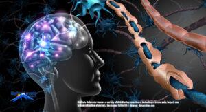 Illustrates demyelinated neurons