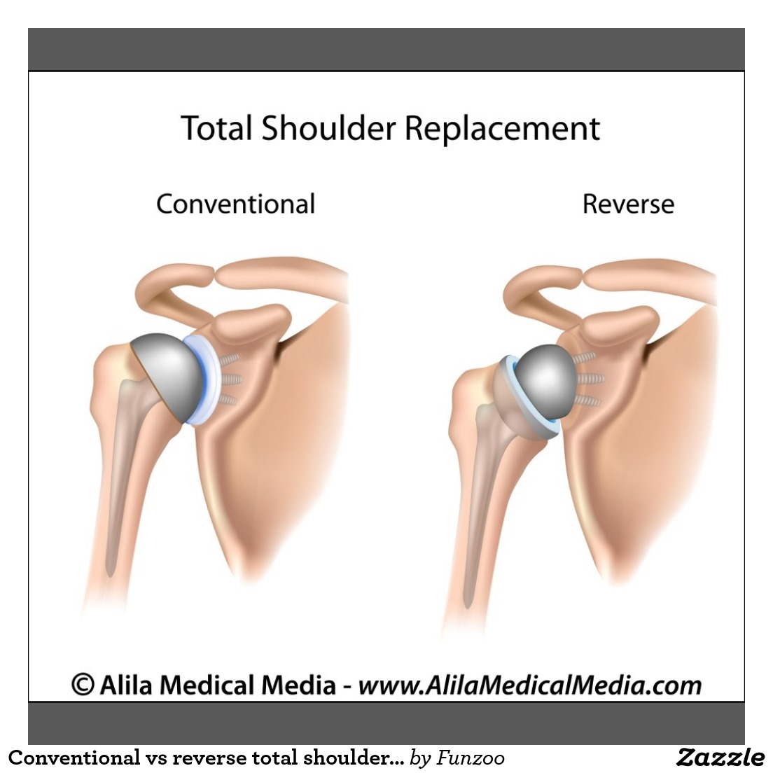 Conventional Vs. Reverse Total Shoulder Replacement