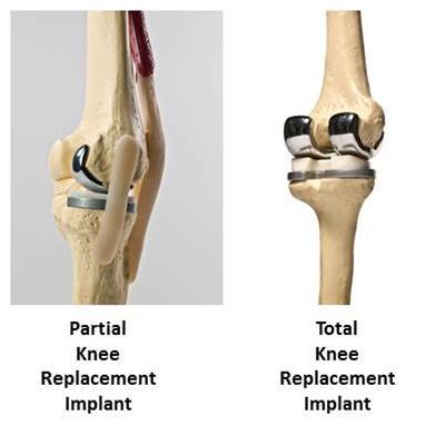 Knee Replacement Implant Comparison