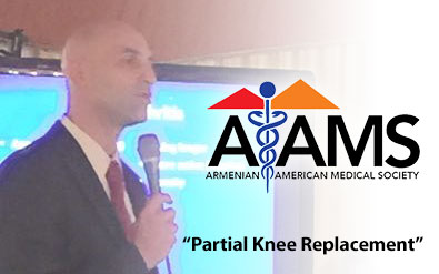 AAMS – Partial Knee Replacement