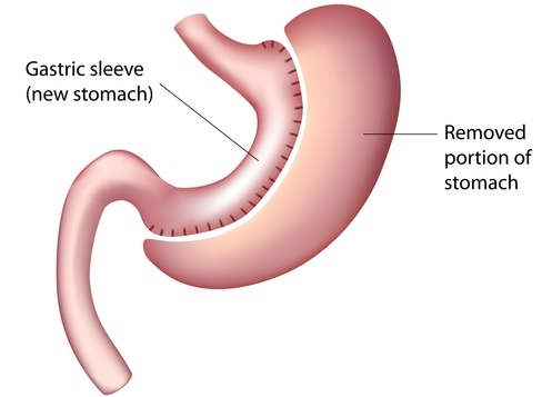 gastric sleeve surgery or laparoscopic sleeve gastrectomy for weight loss