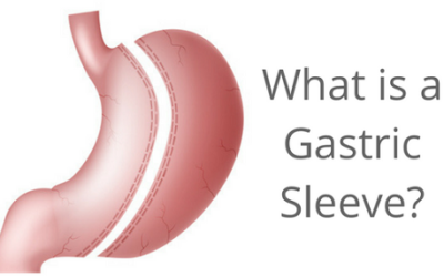 What is a Gastric Sleeve?