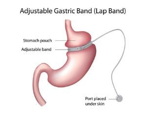 weight losss procedures lap band