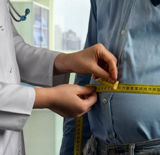 obesity assessment