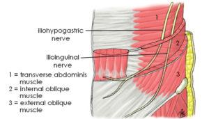 Ilioinguinal Nerve Block