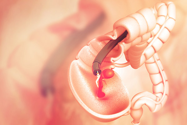 colon cancer prevention and treatment, colon cancer treatment