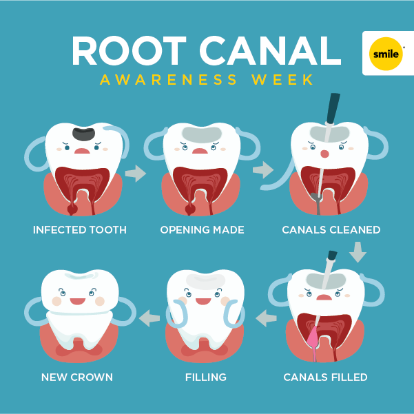 National Root Canal Awareness Week!