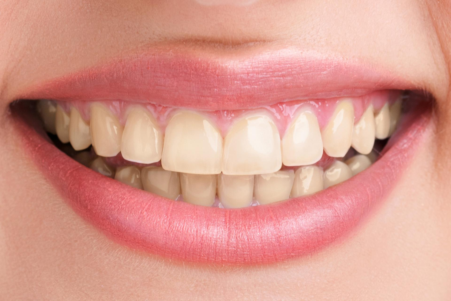 eeth-whitening-before
