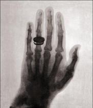First Human X-Ray 1896