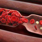 blood-clot-image