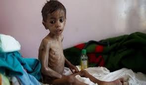 YemeniKids-Hunger