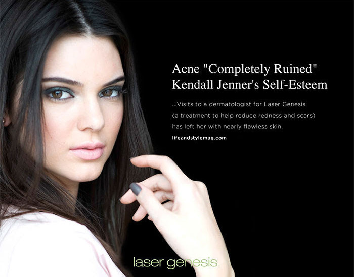 "Acne ""Completely Ruined"" Kendall Jenner's Self-Esteem"
