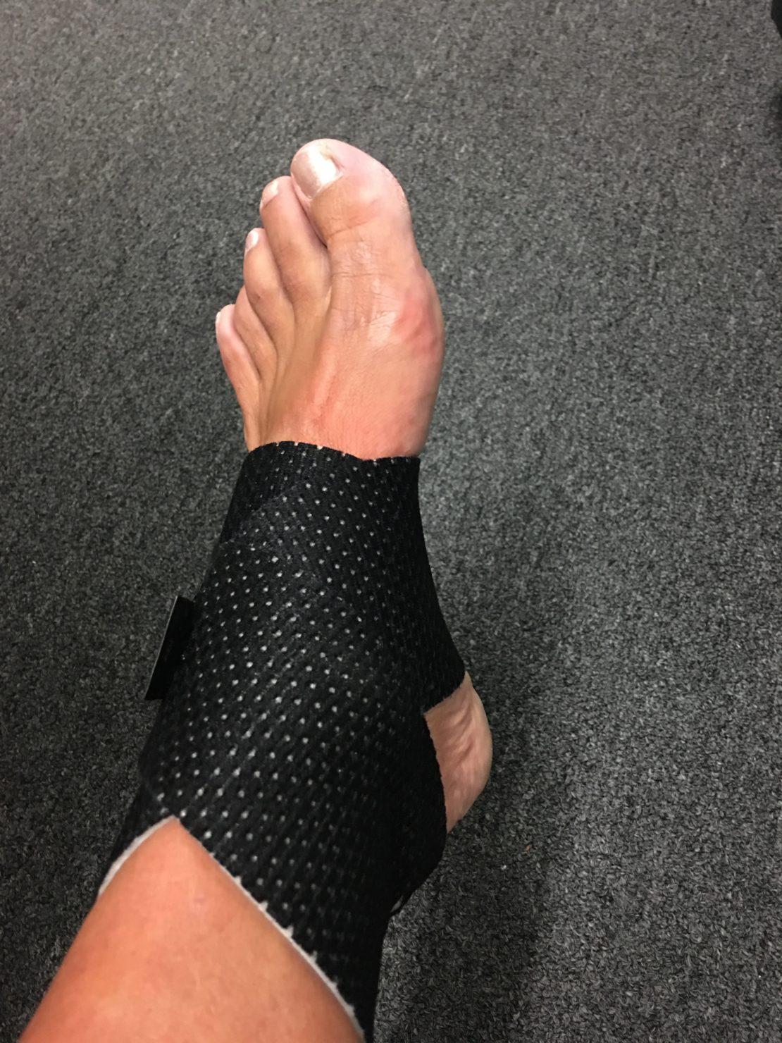 Stacy Sasnett Running Injur