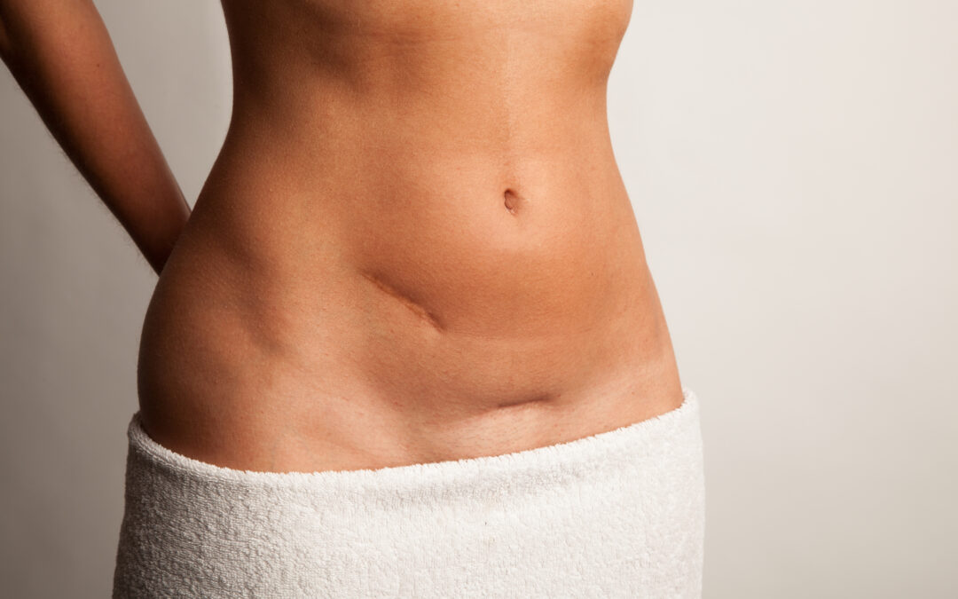 Scar tightness or pain?  What you can do, and how Physical Therapy can help!