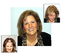 hair-replacement-women