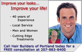 hair-loss-replacement-treatment