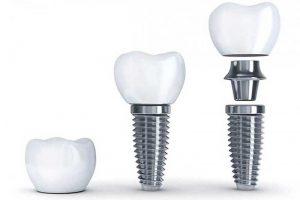Dental Implant Services - Augusta Dental Arts