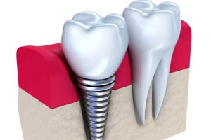 Dental Implant - Augusta Dental Arts