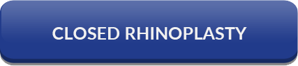 LINK TO CLOSED RHINOPLASTY PAGE