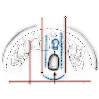 Rehabilitación Oral Dentisalud