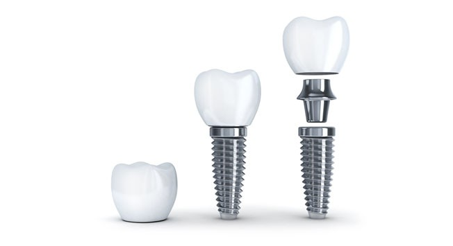Implante DEntal Dentisalud