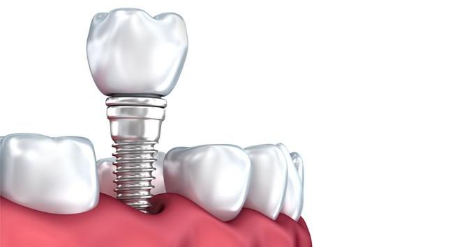 Implante dental Premium Dentisalud