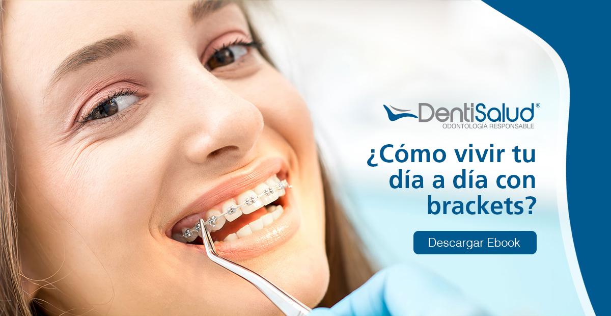 Vivir con ortodoncia es posible
