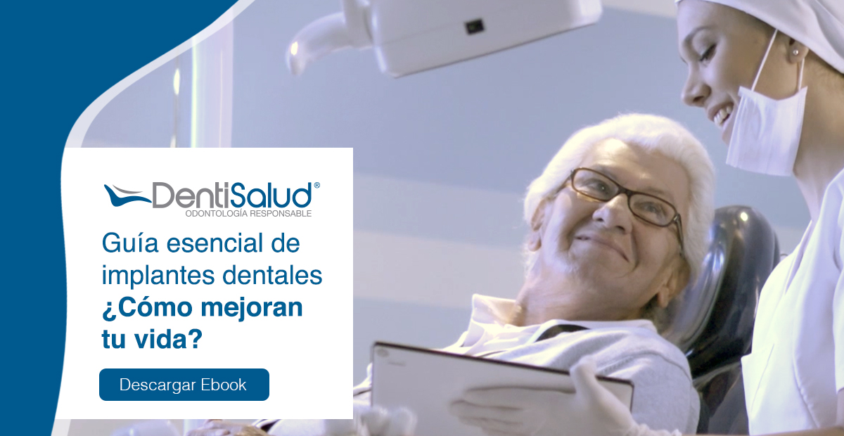 Por qué ponerse implantes dentales