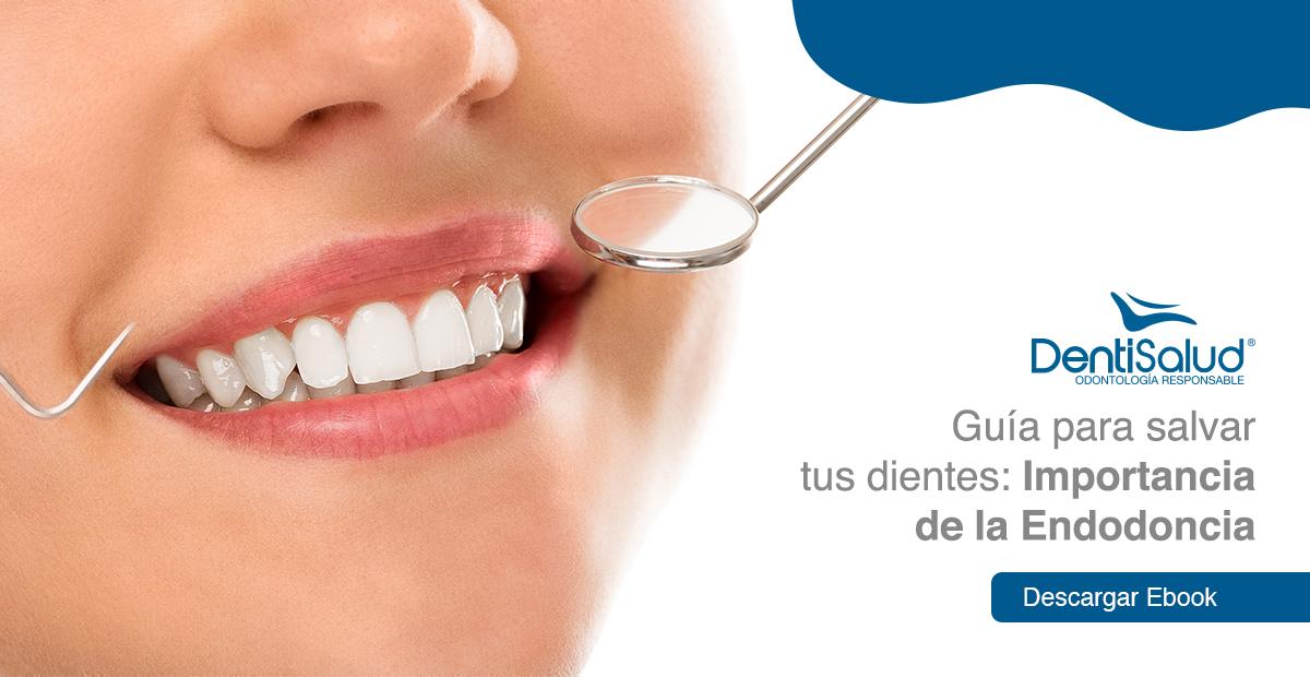 Guía endodoncia