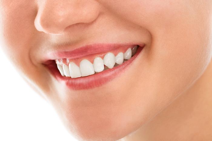 Aprende cómo obtener un diseño de sonrisa eficiente