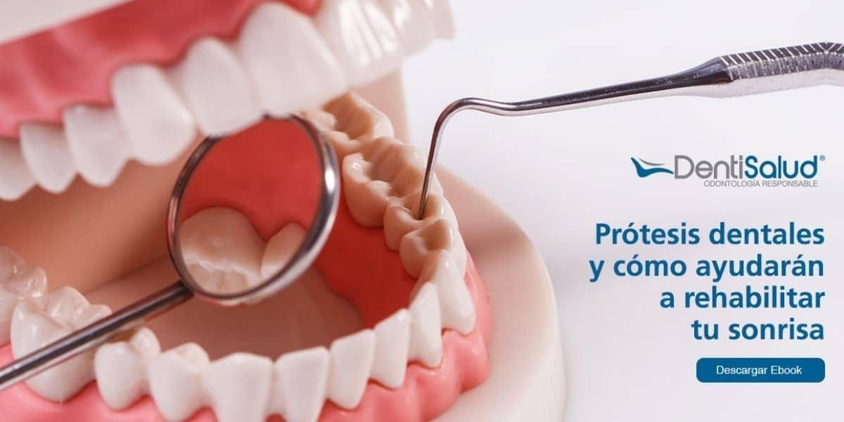 Prótesis dentales ebook