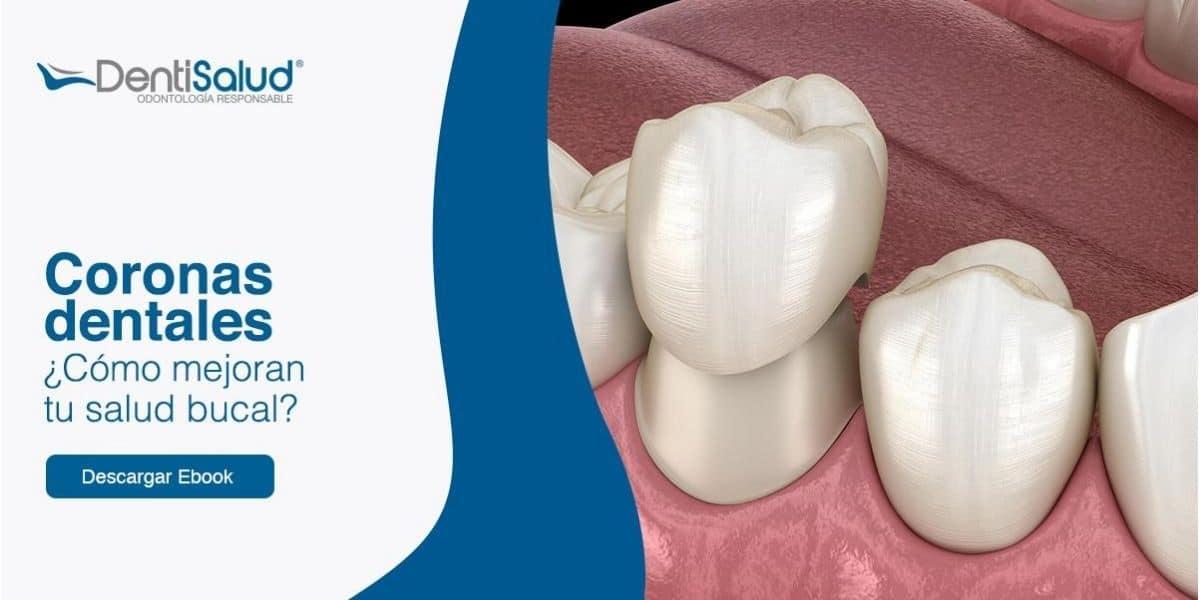 Coronas dentales guía