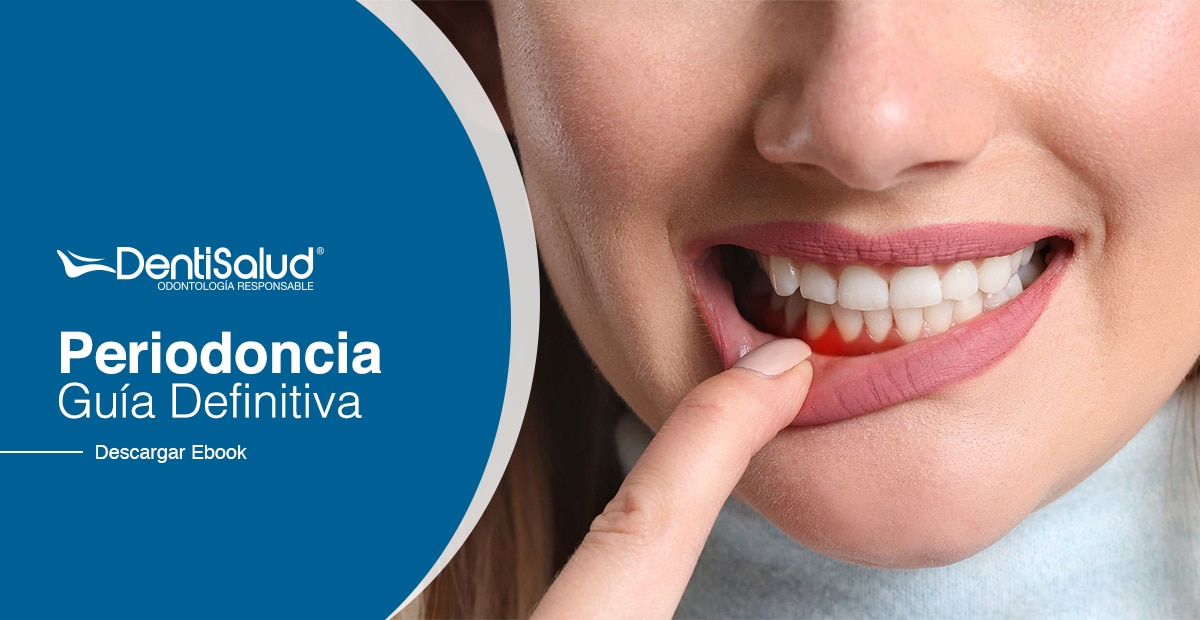 Ebook periodoncia Colombia