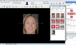 Diseño de sonrisa escaner de Sonrisa - Dentisalud