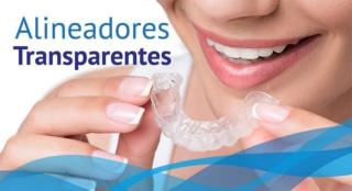 Alineadores Transparentes - DentiSalud