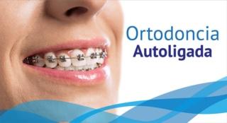 Ortodoncia Autoligada - DentiSalud