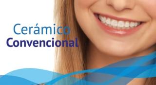 Ortodoncia Cerámica - DentiSalud