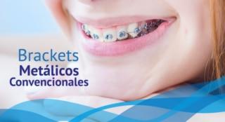 Ortodoncia Tradicional Metalica - Dentisalud