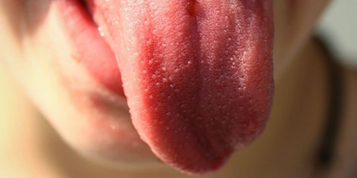 Síntomas de la candidiasis oral y cómo tratarla