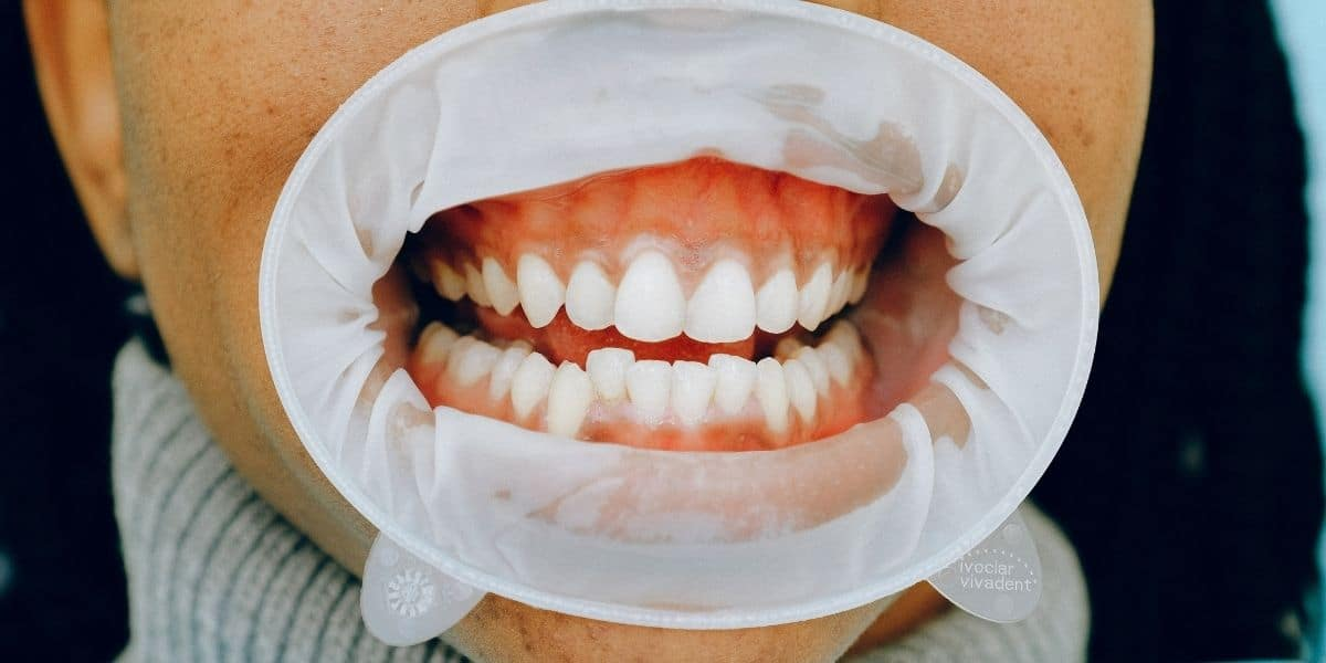 Oclusión dental: Tipos y Ortodoncia