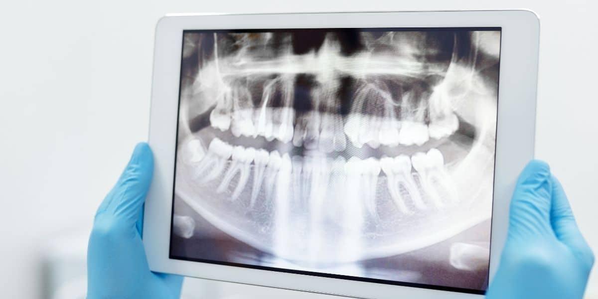 Radiografías dentales para ortodoncia