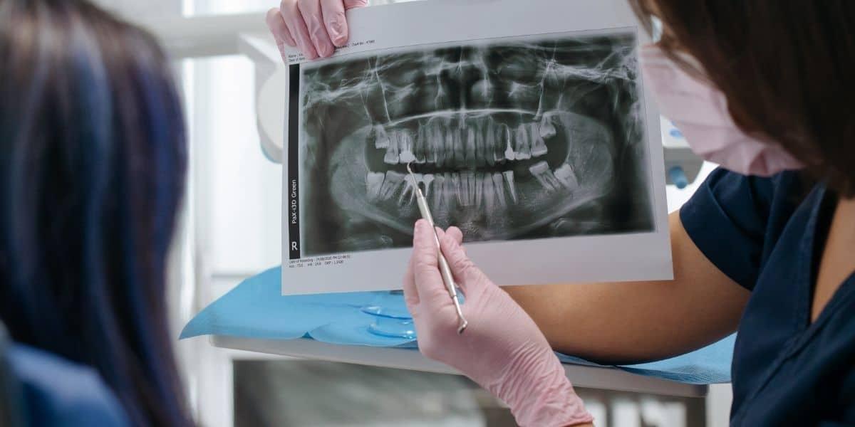radiografías dentales para diagnóstico