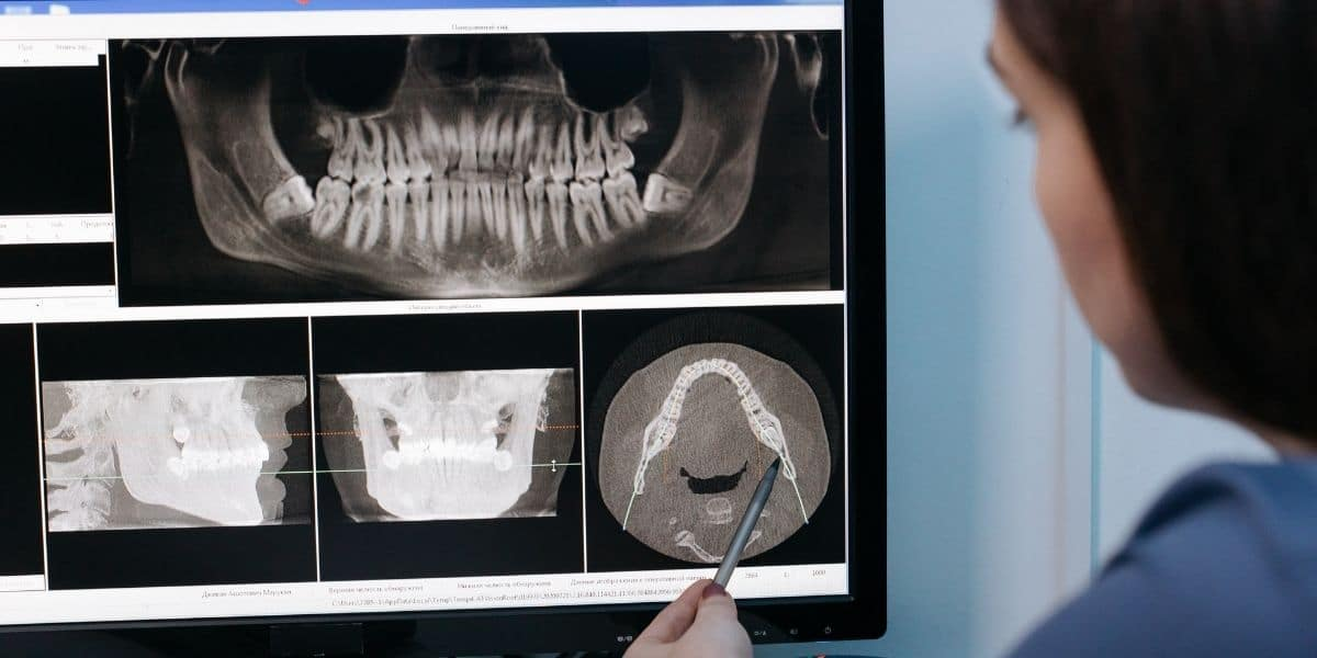 ortodoncia con extracción de premolares es más frecuente
