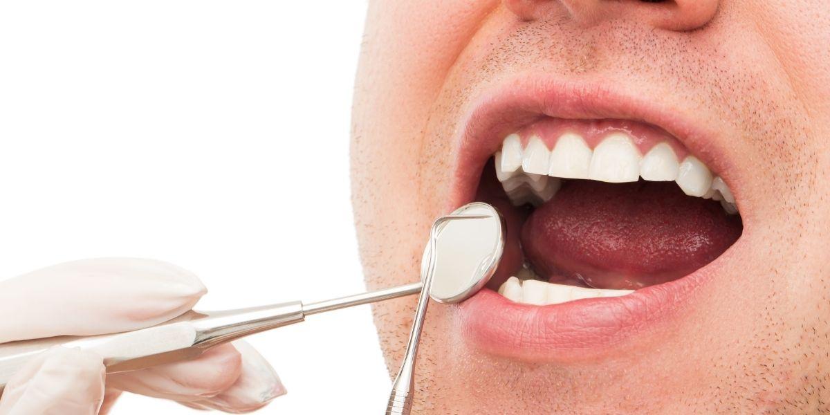 Manchas e infecciones en la lengua