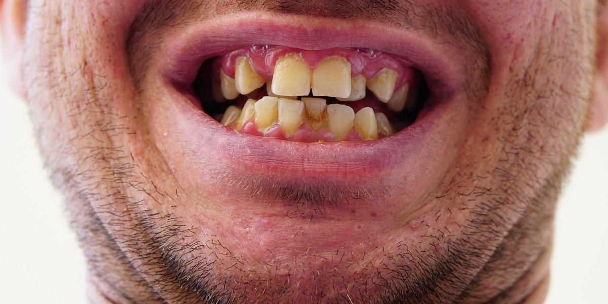 gingivoplastía atiende estética luego de gingivectomía