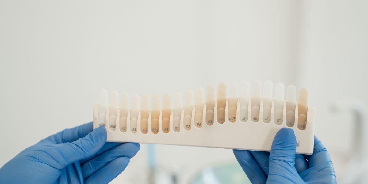 carillas para restauración dental